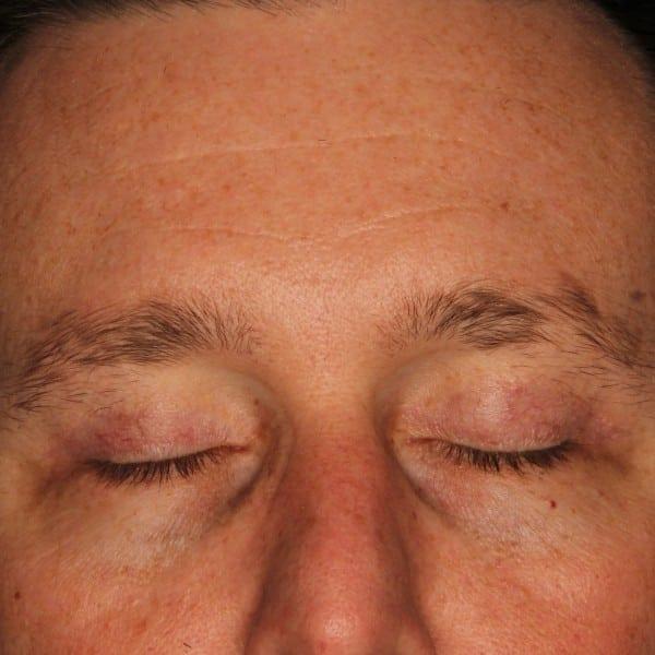 Blepharoplasty Patient 01 After - 2