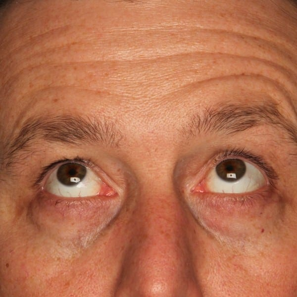 Blepharoplasty Patient 01 Before - 3