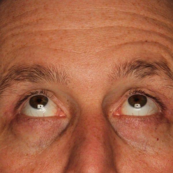Blepharoplasty Patient 01 After - 3