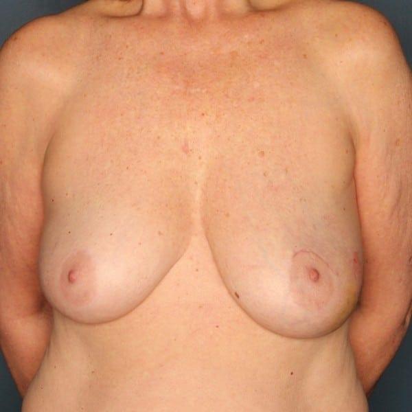 Latissimus Flap Reconstruction Patient 03 Before - 1