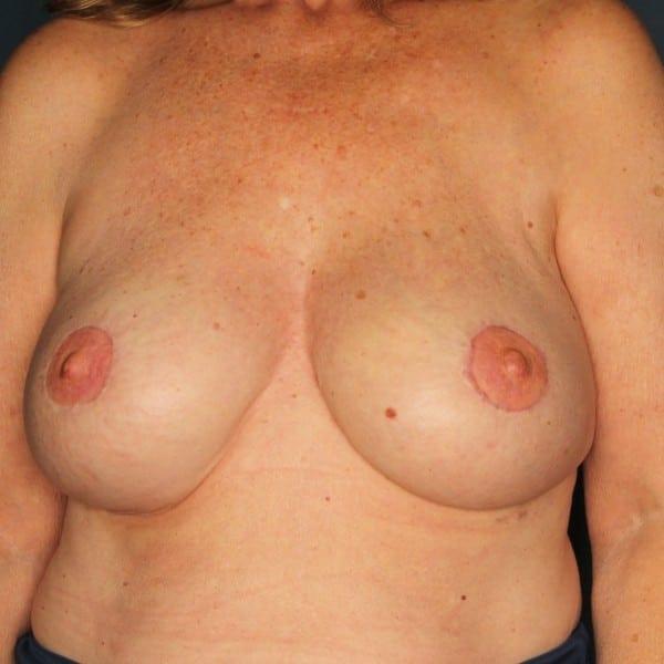 Latissimus Flap Reconstruction Patient 03 After - 1