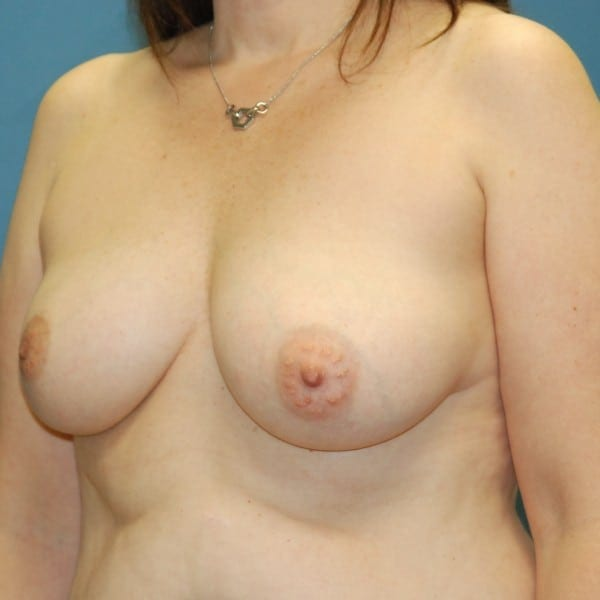 Implant-Based Reconstruction Patient 09 Before - 2