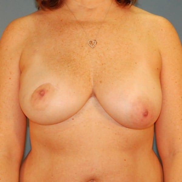 Latissimus Flap Reconstruction Patient 10 Before - 1
