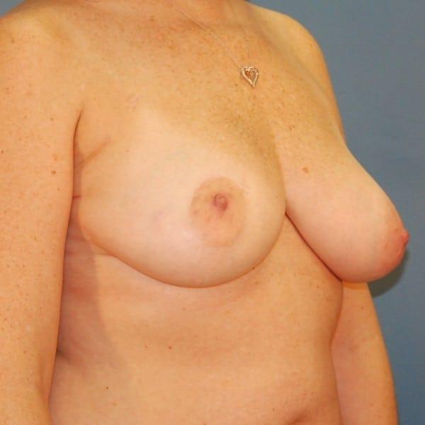 Latissimus Flap Reconstruction Patient 10 Before - 3