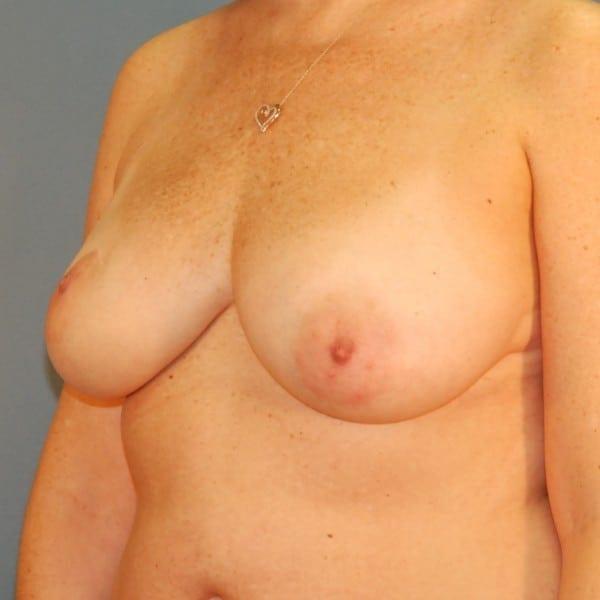 Latissimus Flap Reconstruction Patient 10 Before - 2