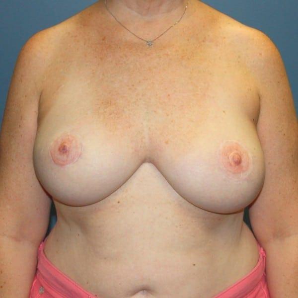 Latissimus Flap Reconstruction Patient 10 After - 1