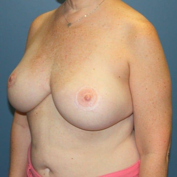 Latissimus Flap Reconstruction Patient 10 After - 2