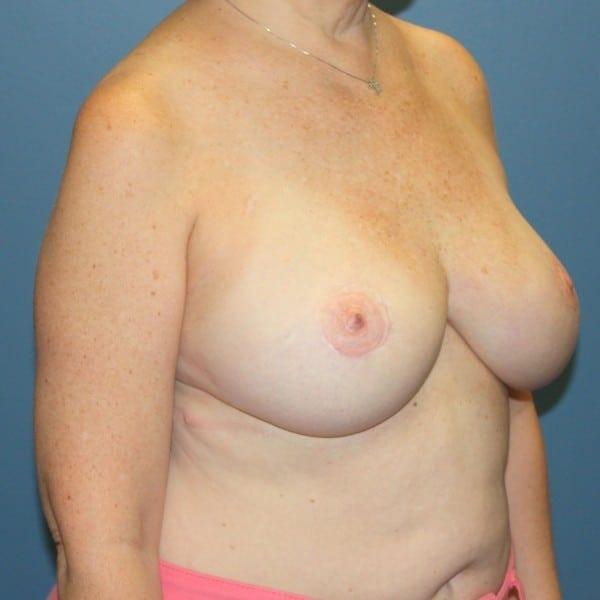 Latissimus Flap Reconstruction Patient 10 After - 3