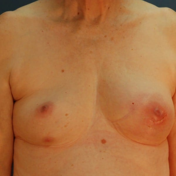Implant-Based Reconstruction Patient 12 Before - 1