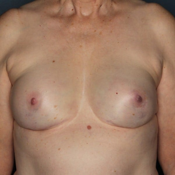 Implant-Based Reconstruction Patient 12 After - 1
