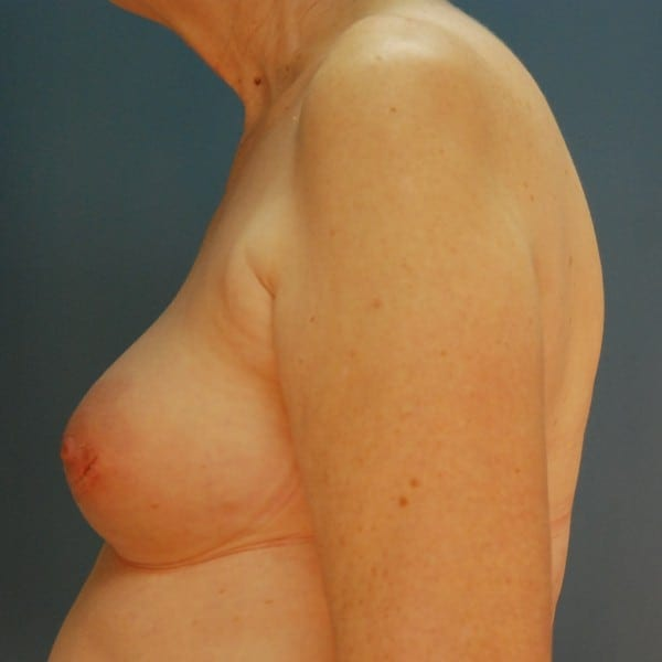 Implant-Based Reconstruction Patient 12 Before - 3