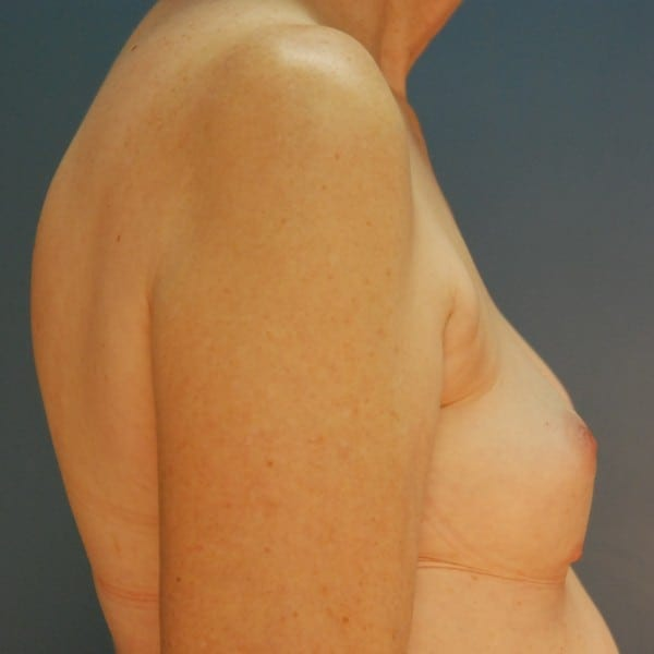 Implant-Based Reconstruction Patient 12 Before - 2