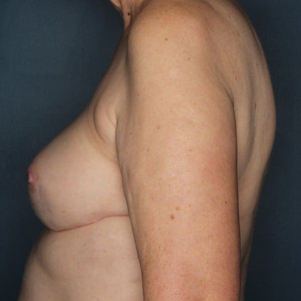 Implant-Based Reconstruction Patient 12 After - 3