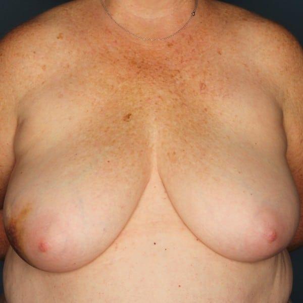Latissimus Flap Reconstruction Patient 12 Before - 1