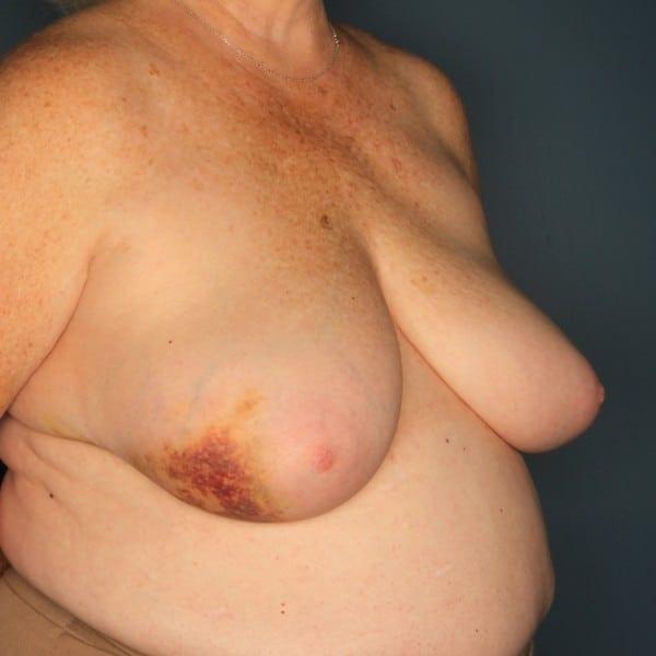 Latissimus Flap Reconstruction Patient 12 Before - 3