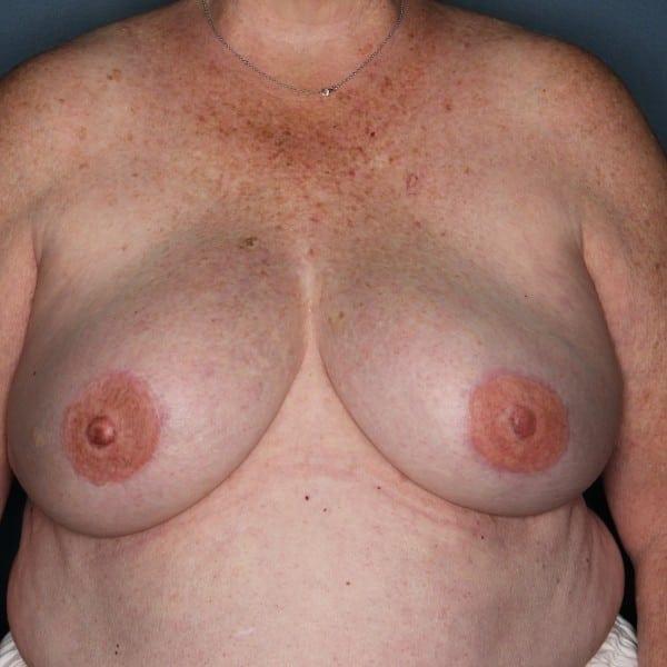Latissimus Flap Reconstruction Patient 12 After - 1