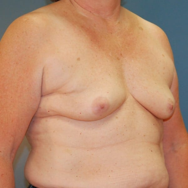 Implant-Based Reconstruction Patient 13 Before - 2