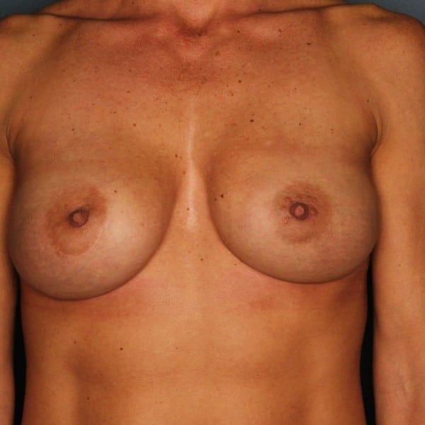 Implant-Based Reconstruction Patient 20 After - 1