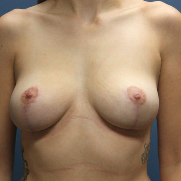 Mastopexy Patient 22 After - 1