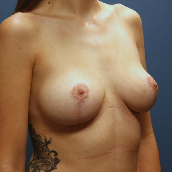 Mastopexy Patient 22 After - 2