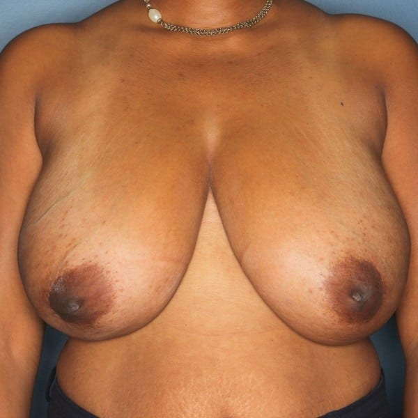 Breast Reduction Patient 25 Before