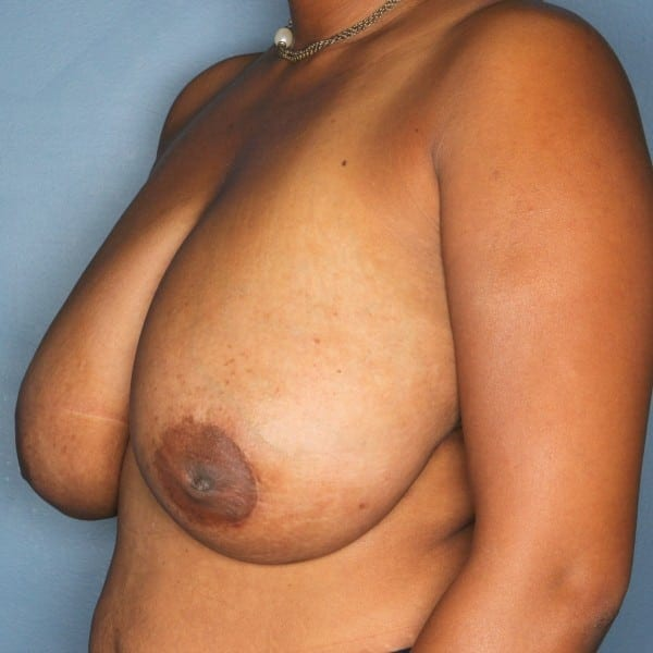 Breast Reduction Patient 25 Before - 3