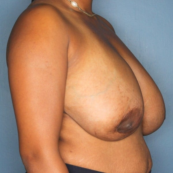 Breast Reduction Patient 25 Before - 2
