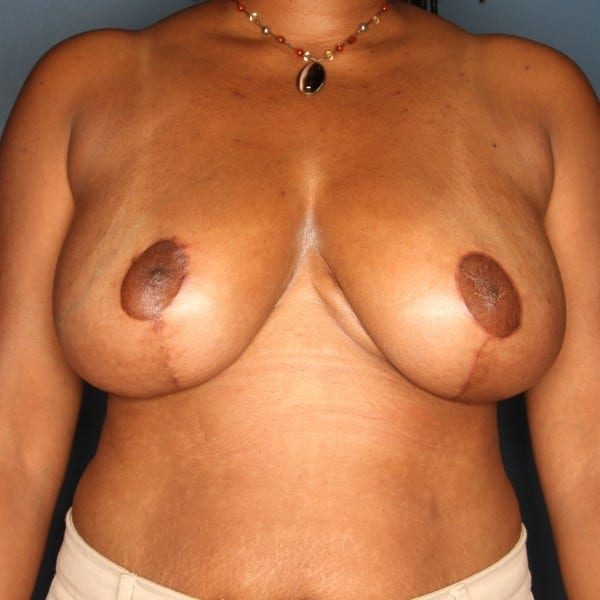 Breast Reduction Patient 25 After