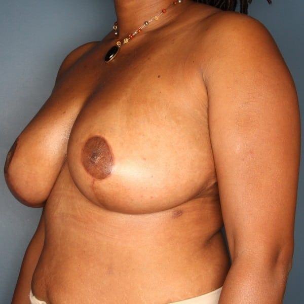 Breast Reduction Patient 25 After - 3