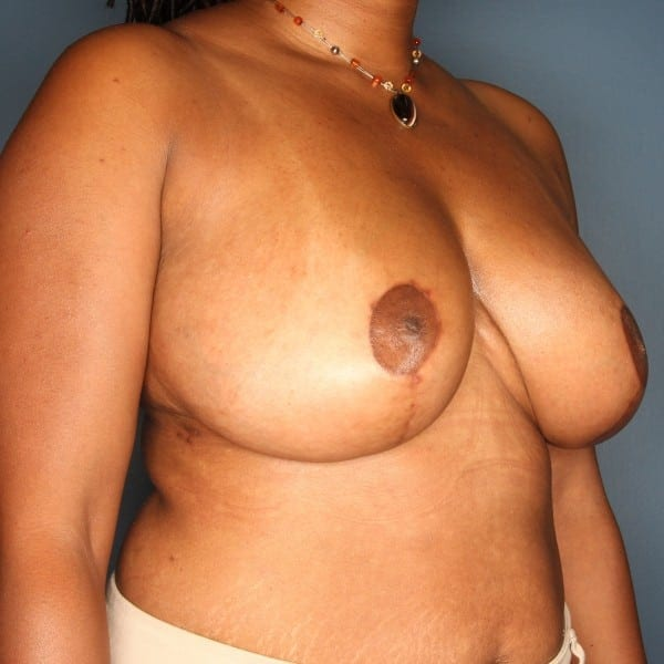Breast Reduction Patient 25 After - 2