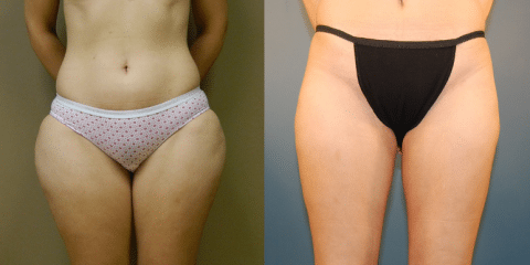 Cohn Liposuction Patient Before and After photos