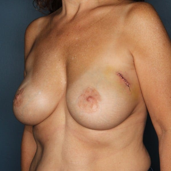 Implant-Based Reconstruction Patient 21 Before - 2