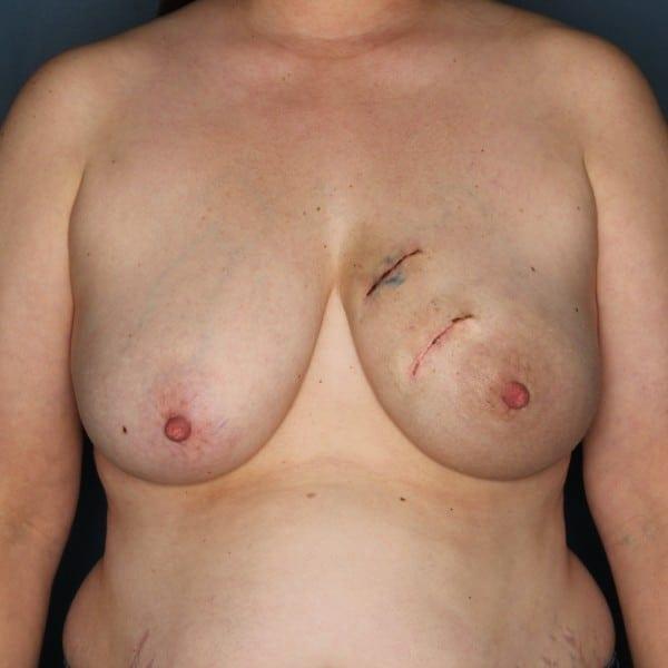 Latissimus Flap Reconstruction Patient 18 Before - 1