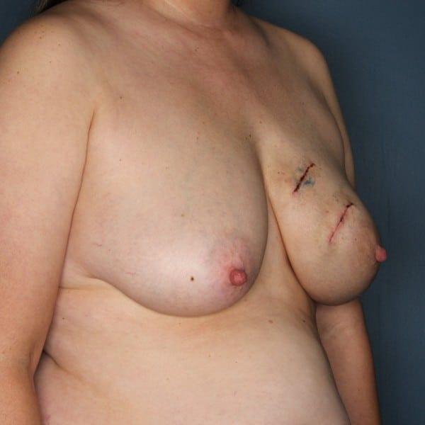 Latissimus Flap Reconstruction Patient 18 Before - 3