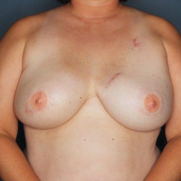 Latissimus Flap Reconstruction Patient 18 After - 1