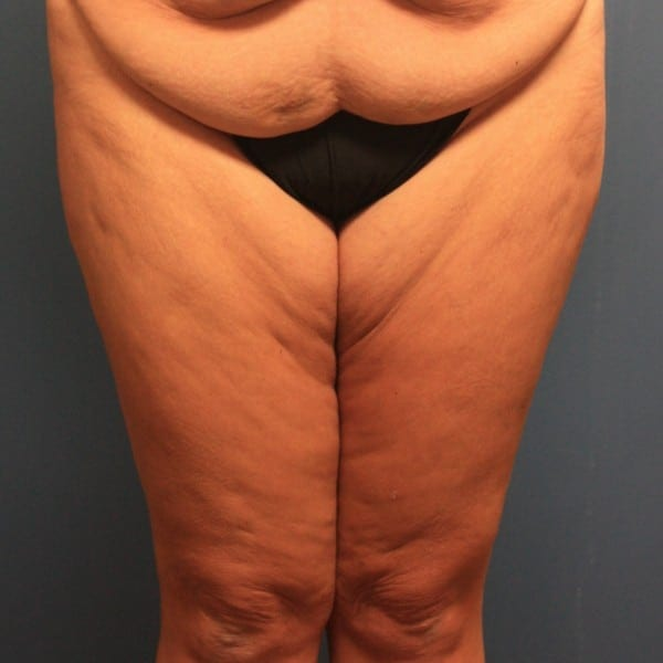 Thigh Lift Patient 01 Before