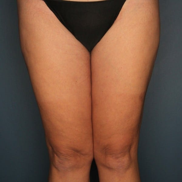 Thigh Lift Patient 01 After