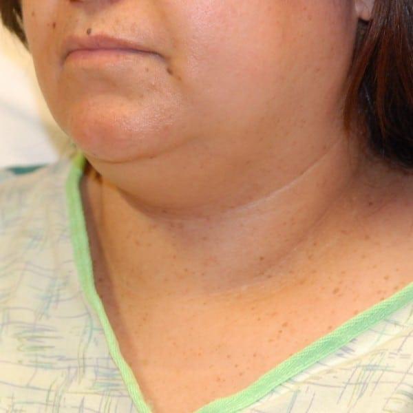 Sub-mental Liposuction Patient 03 Before - 3