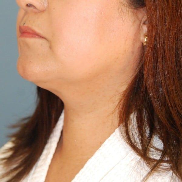 Sub-mental Liposuction Patient 03 After - 3
