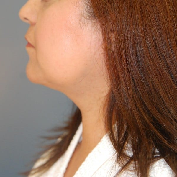 Sub-mental Liposuction Patient 03 After - 1