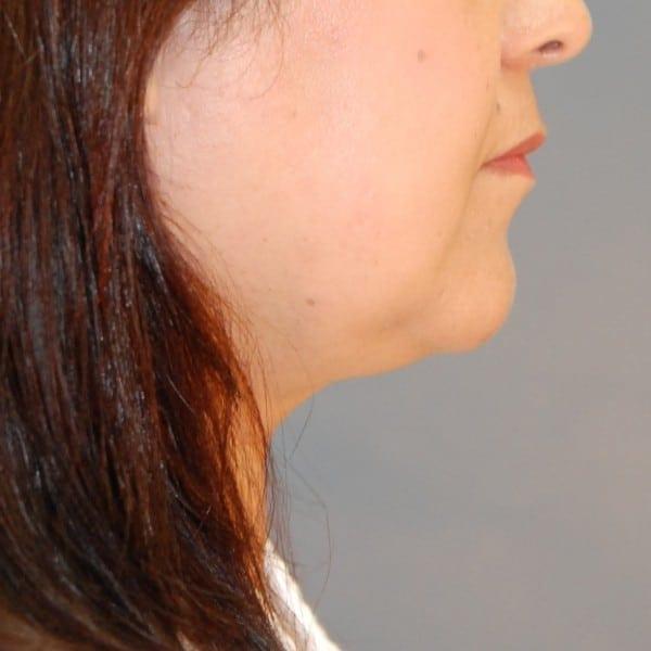 Sub-mental Liposuction Patient 03 After - 2