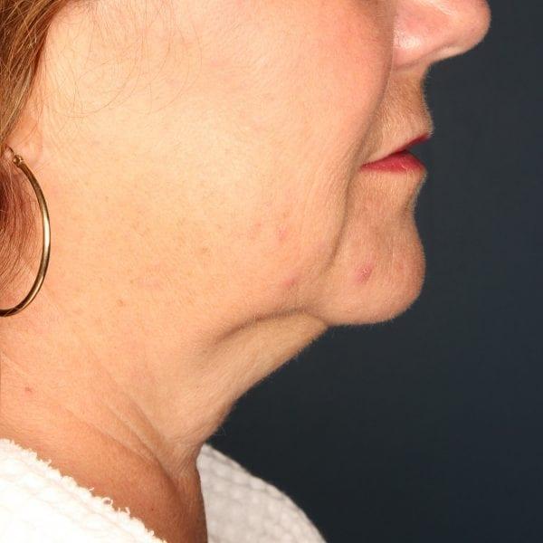 Sub-mental Liposuction Patient 04 Before - 3