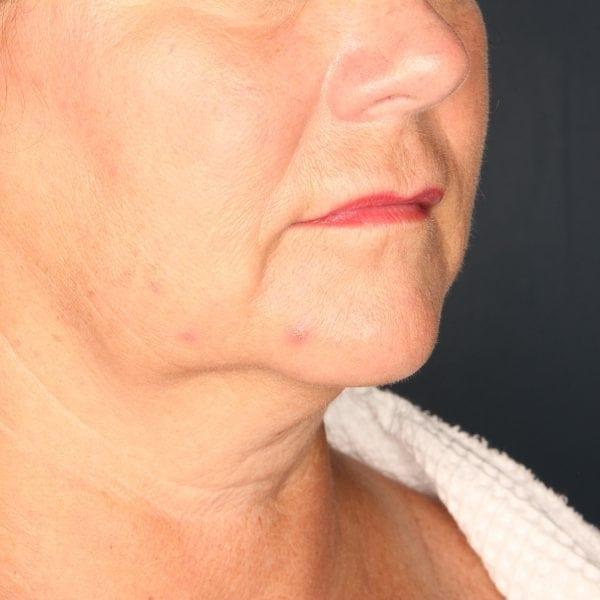 Sub-mental Liposuction Patient 04 Before - 1