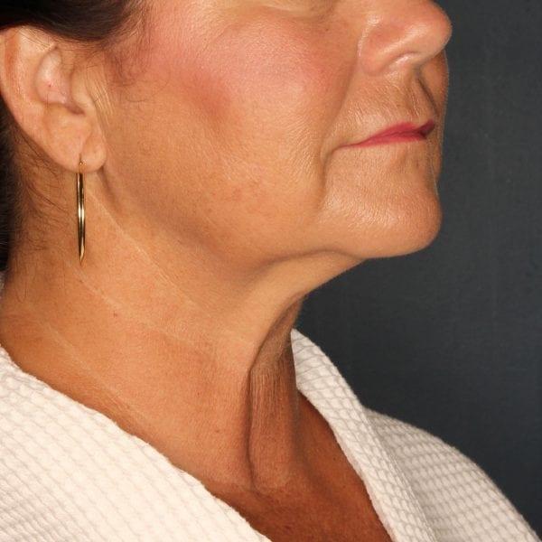 Sub-mental Liposuction Patient 04 After - 1