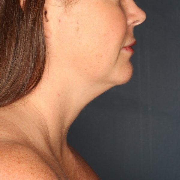 Sub-mental Liposuction Patient 06 Before - 2