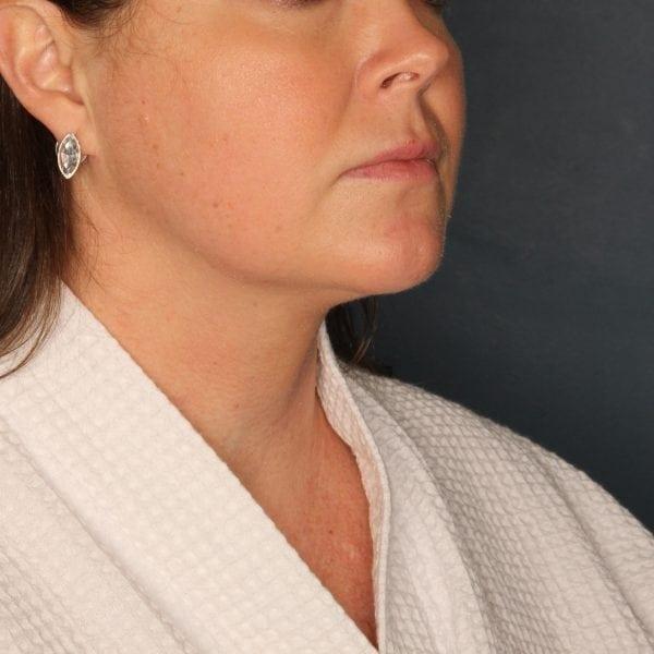 Sub-mental Liposuction Patient 06 After - 1