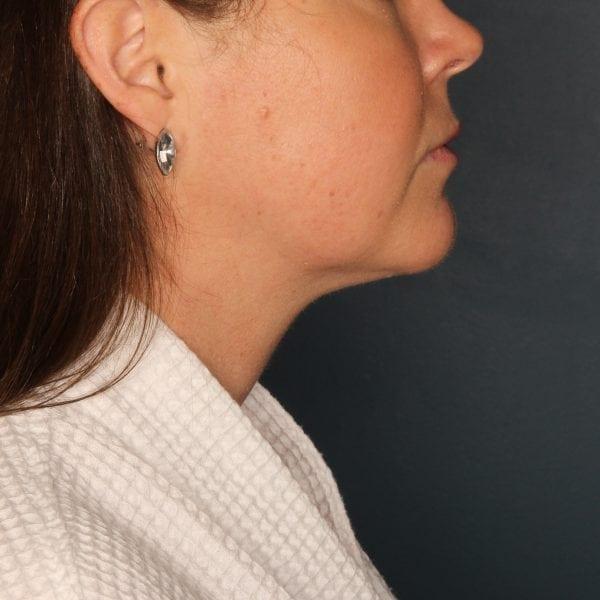 Sub-mental Liposuction Patient 06 After - 2
