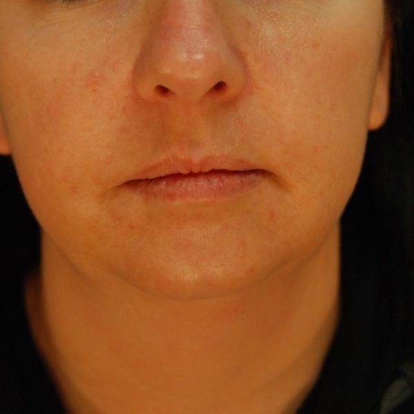 Sub-mental Liposuction Patient 08 Before - 3