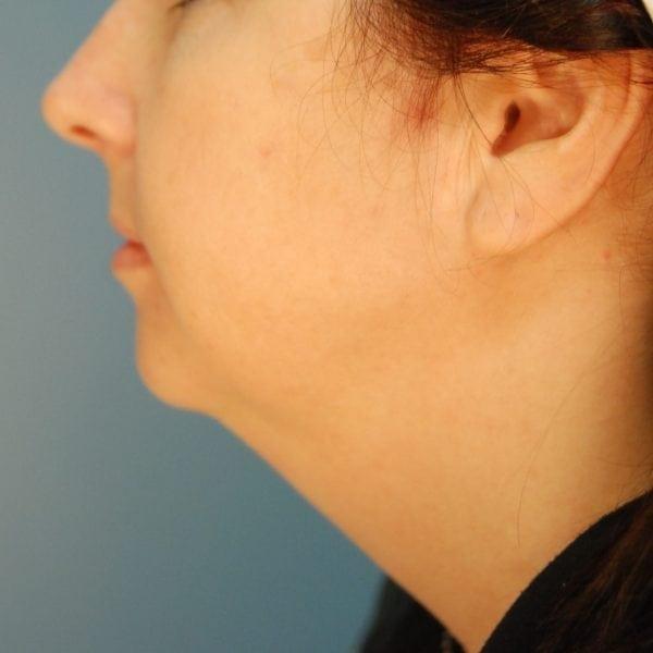 Sub-mental Liposuction Patient 08 Before - 2