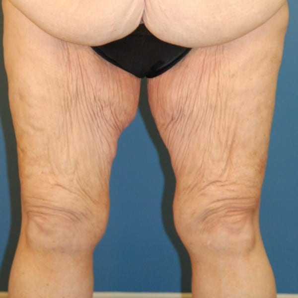 Thigh Lift Patient 02 Before